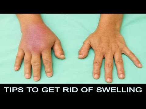 7 Tips How To Get Rid Of Swelling Fast