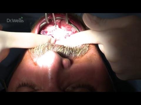 Cirurgia Live guiada com confeção de uma prótese por cad/cam