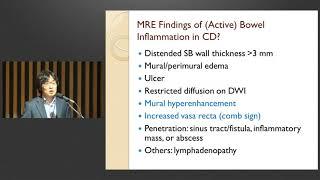 제8회 염증성 장질환 센터 심포지엄 : How to read MR enterography: Basic understanding and common findings 미리보기
