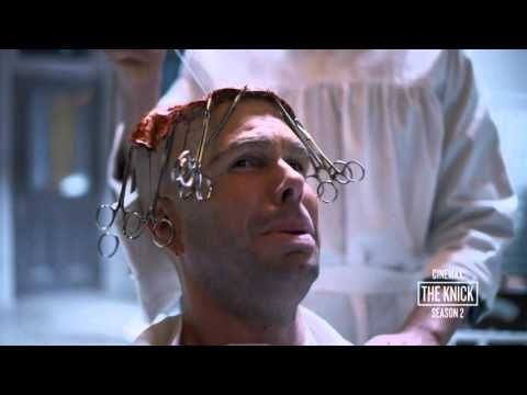 The Knick Season 2: Body Shop  Brain Surgery (Cinemax)
