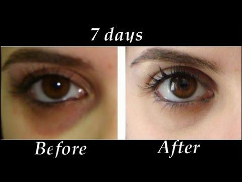 கண்களின் கரு வளையத்தை நீக்க இதோ இலகுவான வழி  Remove Under eye Dark Circles in 7 days | DIY Dark Circle Treatment