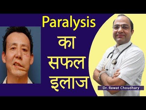 Paralysis (लकवे) का सबसे अच्छा इलाज | Best Treatment of Paralysis
