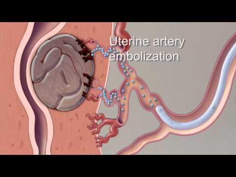 Minimally-Invasive Treatment Options for Uterine Fibroids
