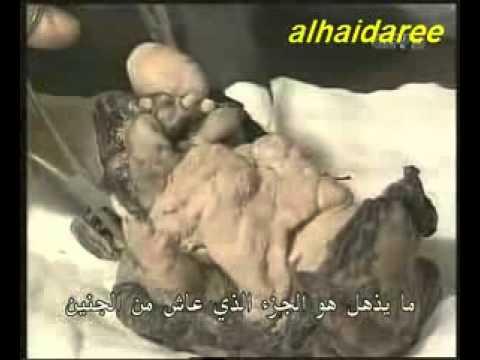 شاب مصرى يدخل موسوعة جينيس بعد أن حمل اخية التوأم فى بطنة لمدة 16 سنة