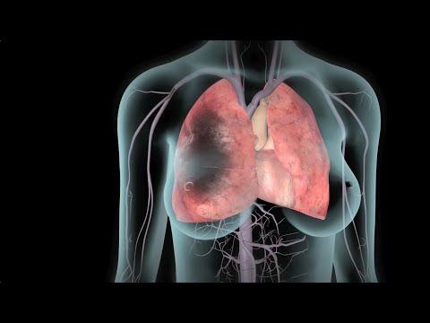 ТГВ и тромбоэмболия легочной артерии