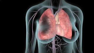 DVT và thuyên tắc phổi
