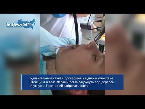 Een enorme slang werd uit de maag van een inwoner van Rusland getrokken