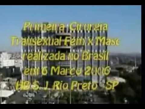nu masculino - Primeira ortofaloplastia em FTM realizada no Brasil. Este vídeo é apenas para mostrar o avanço da medicina em relação à mudança de sexo. Não faço apologia a ...