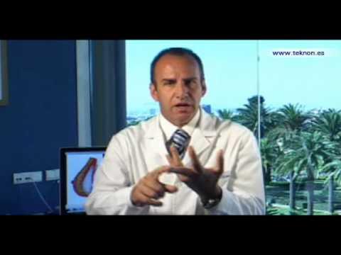 Dr. Vicente Paloma. Rejuvenecimiento facial