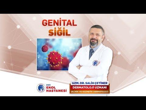 Genital Siğil