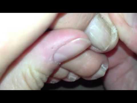comment traiter ongle incarné