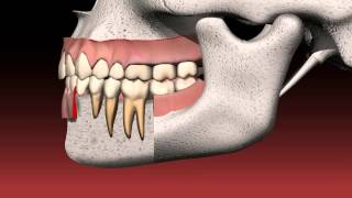 How a Dental Bridge Works