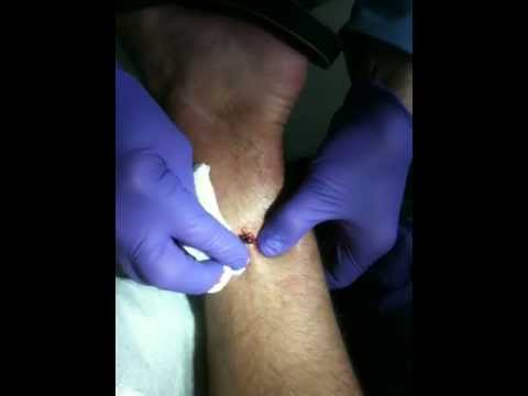 Botfly pops out of leg