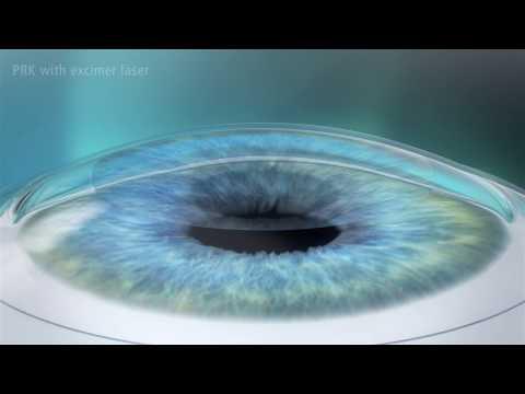 Photorefractive Keratectomy (PRK) Laser Eye Surgery