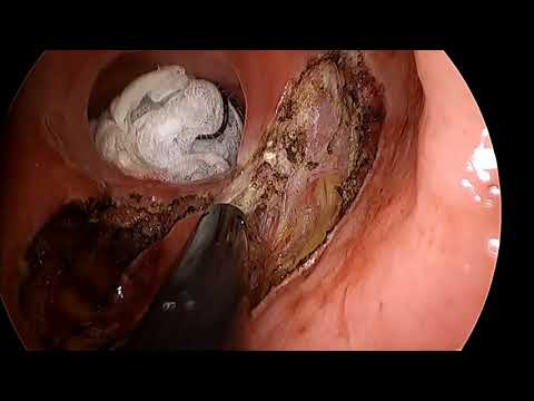 Transanal Minimally Invasive Approach for the Resection of Retrorectal Tumour