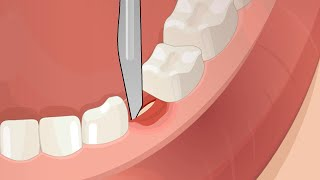 Dental Surgery Operation Root Canal, Implant, Anesthesia