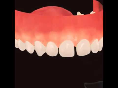 Orthodontic transparent