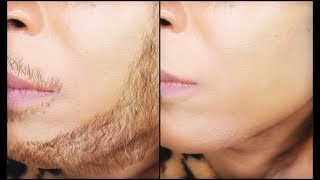 HOW TO REMOVE FACIAL HAIR PERMANENTLY ,WITH JUST  3 INGREDIENTS |Khichi Beauty