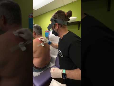 Massive Cyst Incision & Drainage at Las Vegas Dermatology by Dr. H.L. Greenberg