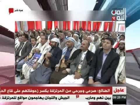 اليمن اليوم 25 2 2017