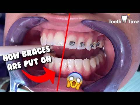 How Braces are put on - Dental Braces Tooth Time Family Dentistry New Braunfels Texas