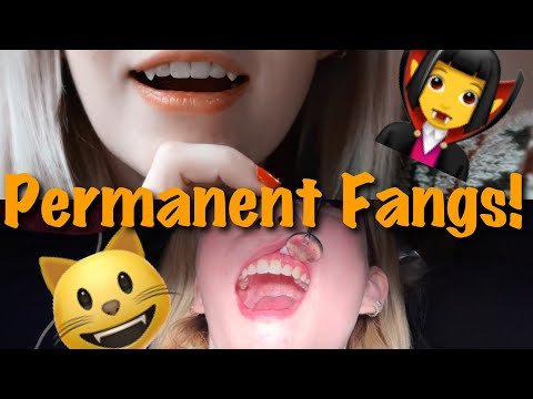 Permanent Fangs Pt. 2 / Repair! My Experience, Cost, Cons