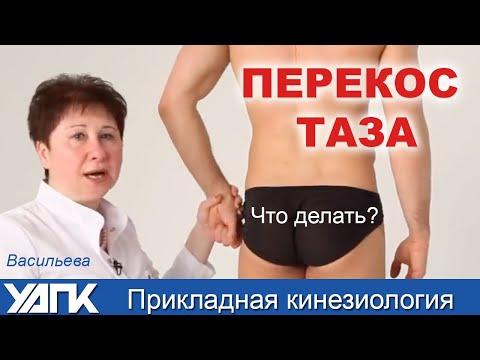 Прикладная кинезиология. Мастер-класс Людмила Васильева ПЕРЕКОС ТАЗА.