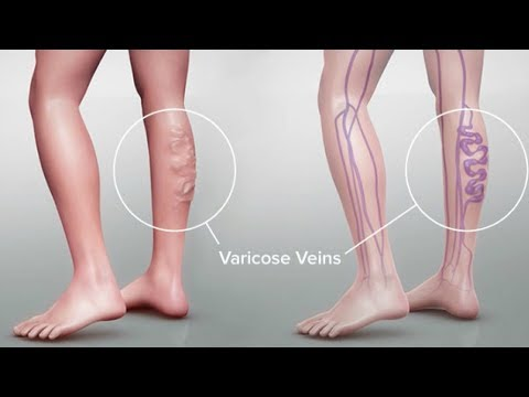 Varicose Vein Symptoms and Treatment in Tamil Health tips