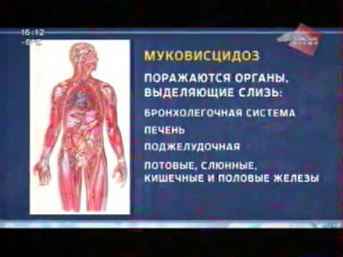 В Томской области разработан индивидуальный порядок лечения больных муковисцидозом