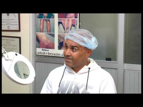 Patient Review After FUE Hair Transplant Surgery