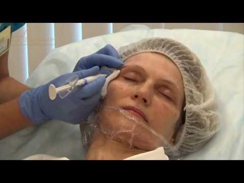 Процедура контурная пластика лица