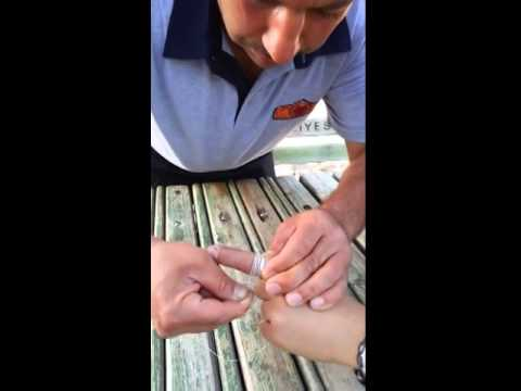 Sıkışan yüzük parmaktan nasıl çıkartılır?