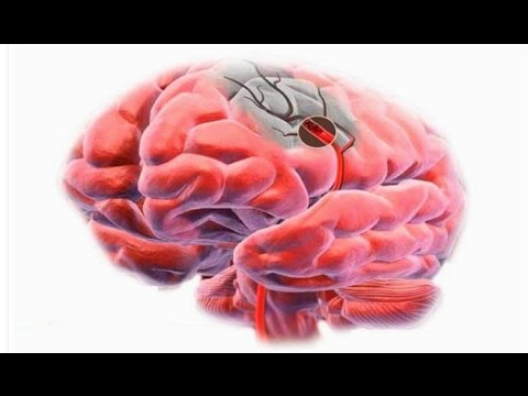 Очищение головного мозга домашних условиях