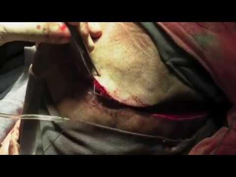 Операция Трепанация черепа Удаление опухоли головного мозга.