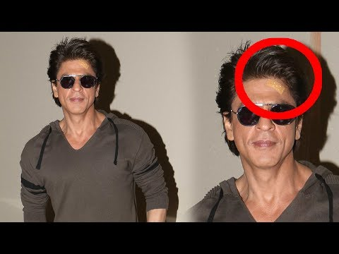 Shah Rukh Khan Has Hurt His Forehead During Promot
