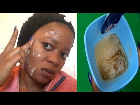 YOU WILL NEVER HAVE DARK SPOTS AGAIN AFTER USING THIS FOR 3 DAYS