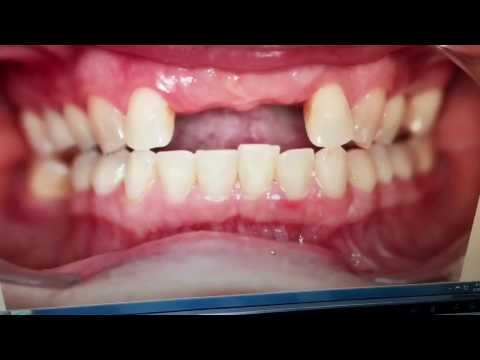 Missing front teeth? Can't afford implants? Check this affordable procedure out!