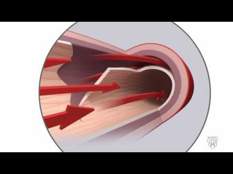 Spontaneous coronary artery dissection (SCAD) Animation