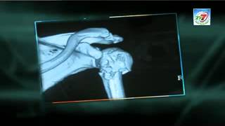 Dr.Chandrashekar Interview TV7 rewind your joints Part2