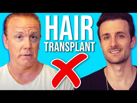 10 Reasons - Do Not Get A Hair Transplant