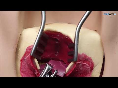 How to repair 3rd degree Perineal Tear