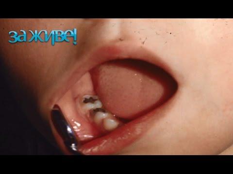 5 секретов по уходу за зубами от немецкого стоматолога – За живе! Сезон 3. Выпуск 41 от 7.11.16