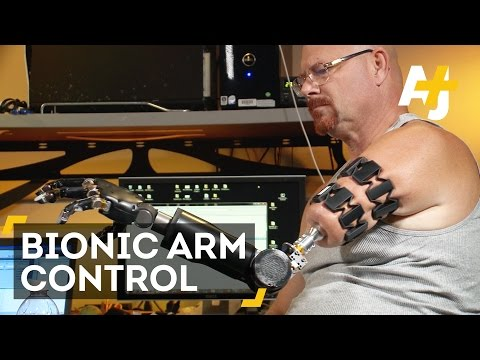 This Man Can Control His Bionic Arm With His Mind