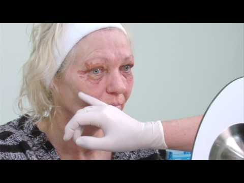 Testimonial - Plexr Plasma Therapy