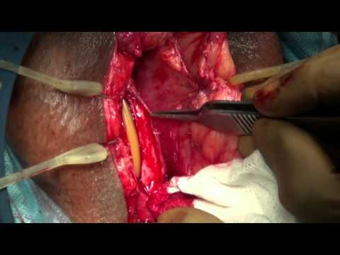 OMG urethroplasty