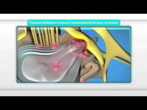 [Уникальные методы] Грыжа межпозвоночного диска шейного отдела позвоночника