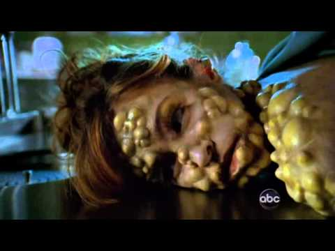 pushing daisies - bzzz!!  2x01