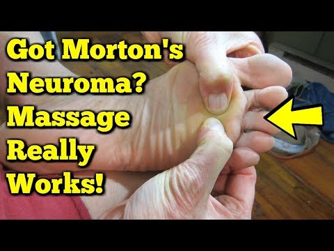 Morton's Neuroma Massage - Exercises to AVOID Surgery!