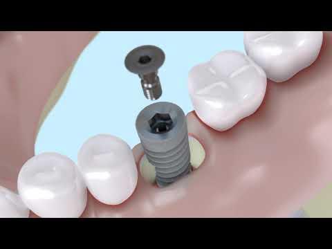 Операция №9 Удаление зуба с имплантацией без стабильности