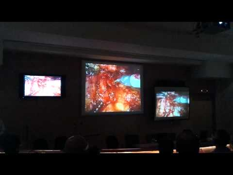 Live Robotic Assisted Surgery @ Centre For Robotic Surgery (CRS) - MPUH, Nadiad.